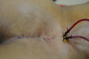 incision and drains at the conclusion of surgery