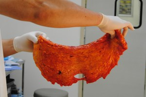 skin, and adipose tissue removed during abdominoplasty.