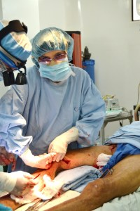 performing a saphenectomy